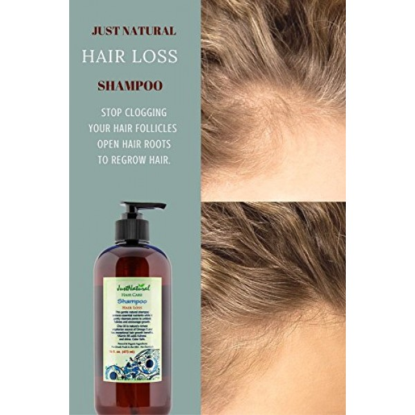 Hair Loss Therapy Shampoo | Best Shampoo for Healthy Looking Hair ...